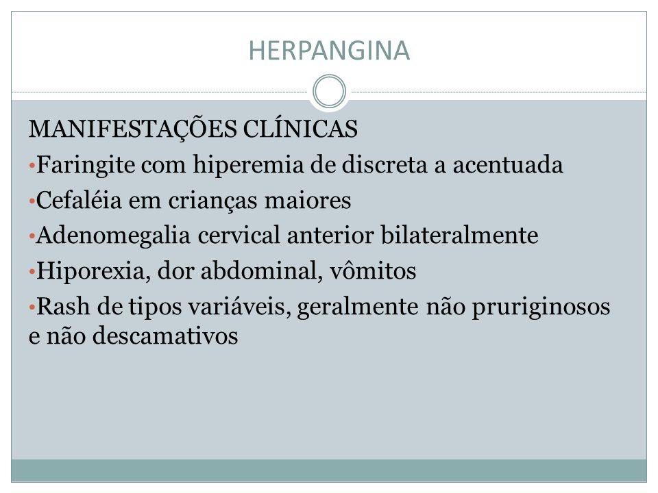 HERPANGINA MANIFESTAÇÕES CLÍNICAS Faringite com hiperemia de discreta a acentuada Cefaléia em crianças maiores Adenomegalia cervical anterior bilatera