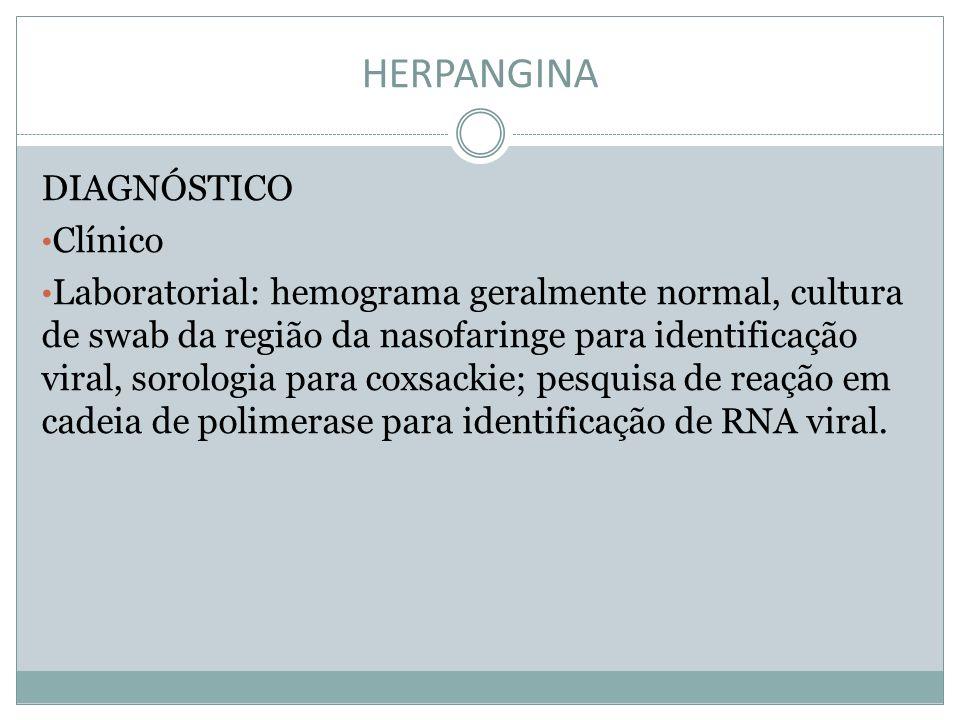 HERPANGINA DIAGNÓSTICO Clínico Laboratorial: hemograma geralmente normal, cultura de swab da região da nasofaringe para identificação viral, sorologia