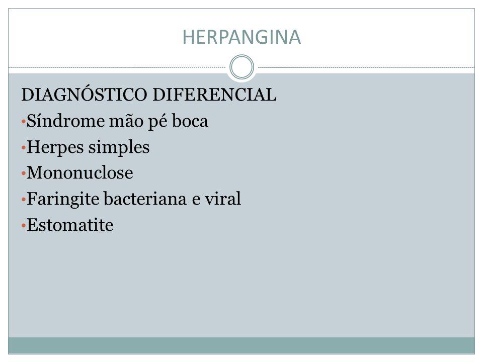 HERPANGINA DIAGNÓSTICO DIFERENCIAL Síndrome mão pé boca Herpes simples Mononuclose Faringite bacteriana e viral Estomatite
