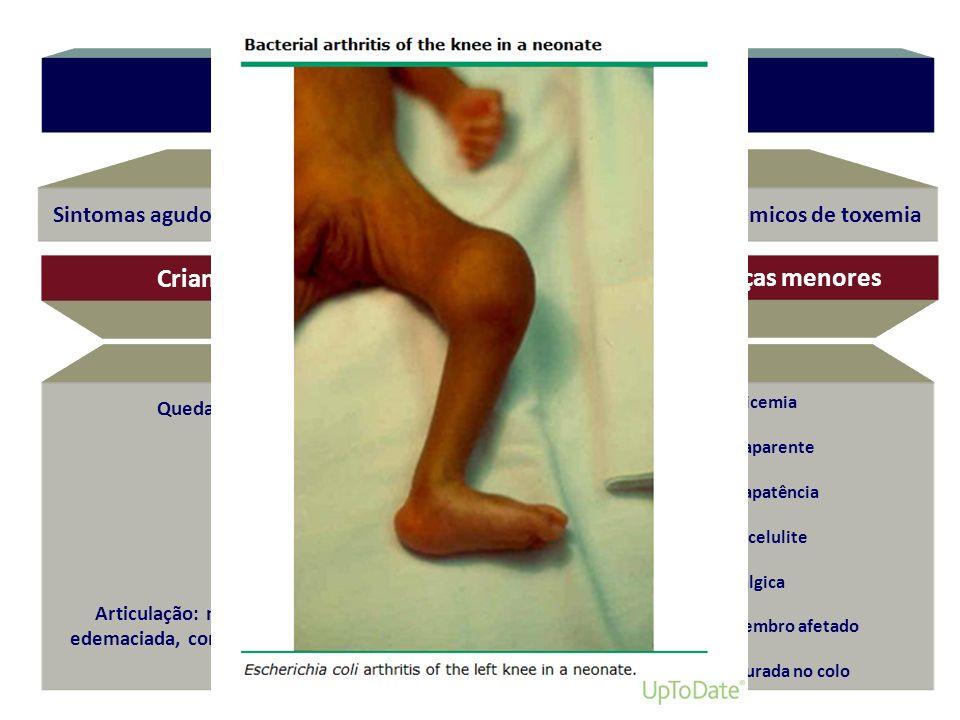 Sintomas agudos: monoartrite francamente inflamatória + sinais sistêmicos de toxemia Sinais clínicos Sinais de septicemia Febre sem foco aparente Irri