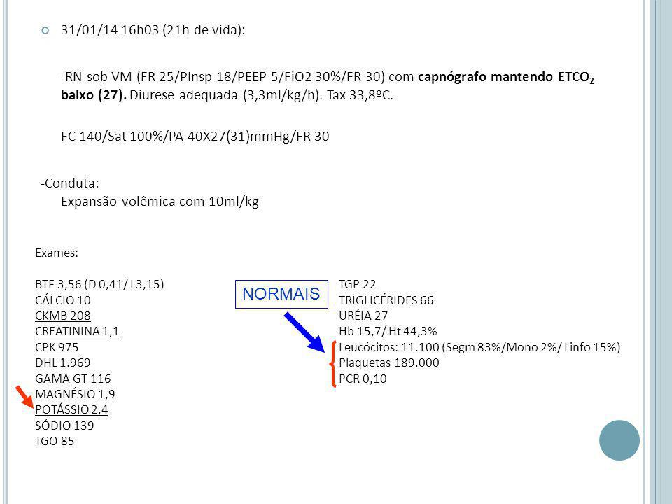 31/01/14 16h03 (21h de vida): -RN sob VM (FR 25/PInsp 18/PEEP 5/FiO2 30%/FR 30) com capnógrafo mantendo ETCO 2 baixo (27).