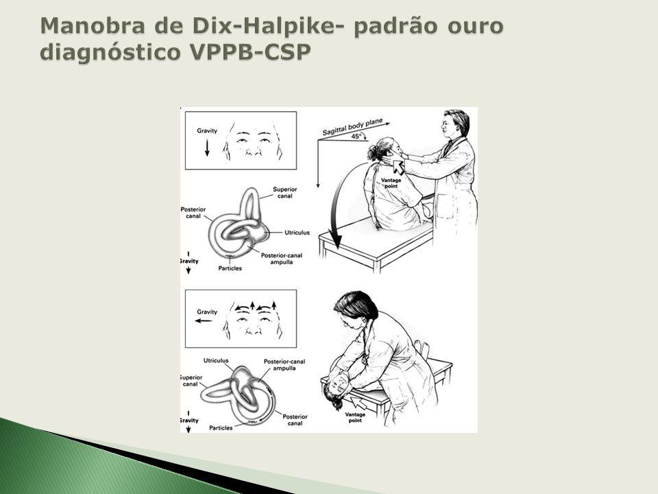 1-Pacientes relatam história de vertigem provocada por alterações na posição da cabeça em relação à gravidade. 2-Exame físico presença de nistagmo car