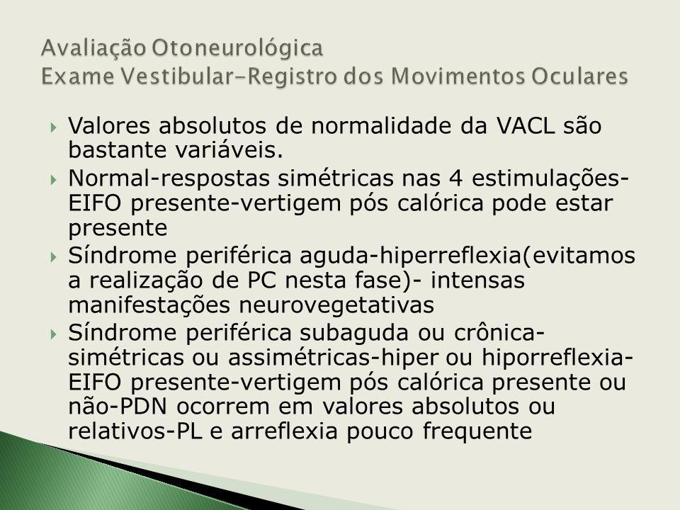 ENG- Eletronistagmógrafo -capta a diferença de potencial elétrico entre a córnea(+) e a retina(-) I e II CANAIS VENG-vectoeletronistagmógrafo- III can