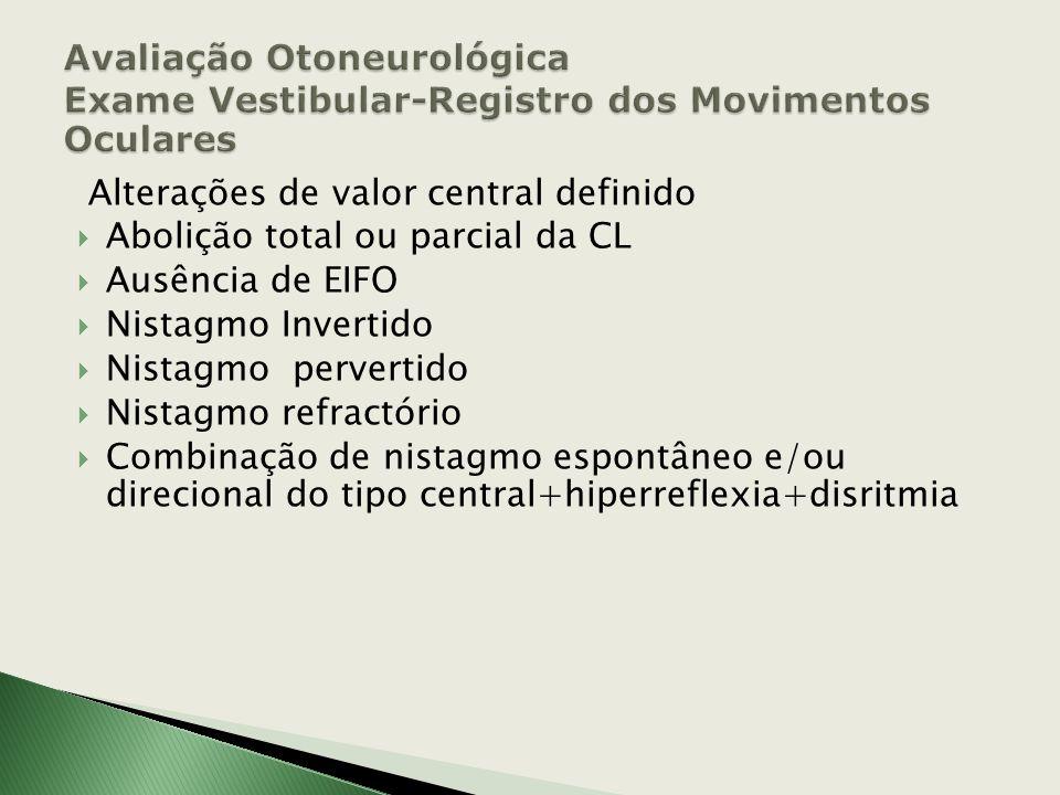 Alterações sugestivas de localização central Decomposição da CL Dissociação cócleovestibular Dissociação nistagmo-vertiginosa Decrutamento Grande escr