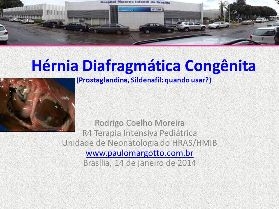 Hérnia Diafragmática Congênita (Prostaglandina, Sildenafil: quando usar?) Rodrigo Coelho Moreira R4 Terapia Intensiva Pediátrica Unidade de Neonatolog