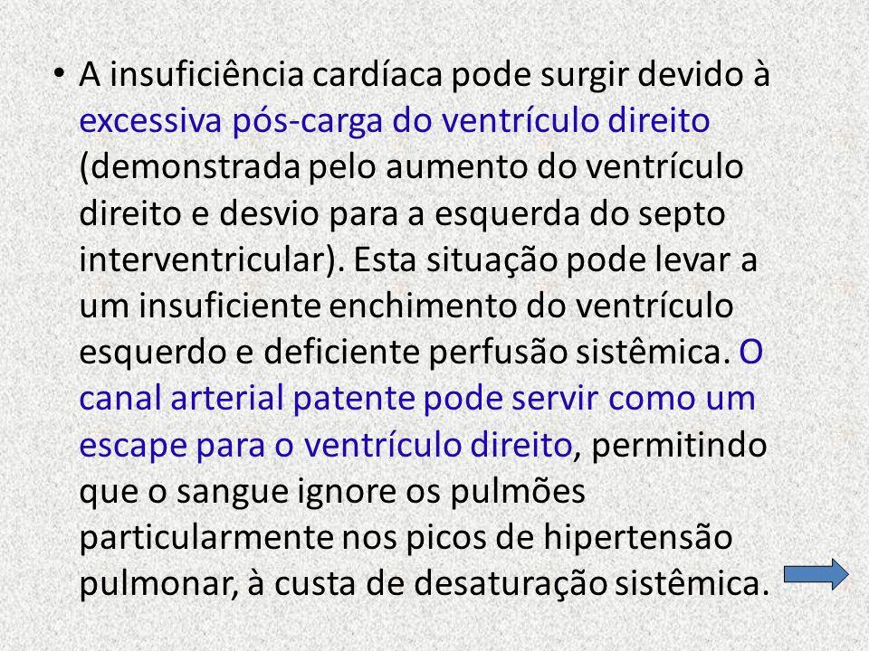 A insuficiência cardíaca pode surgir devido à excessiva pós-carga do ventrículo direito (demonstrada pelo aumento do ventrículo direito e desvio para