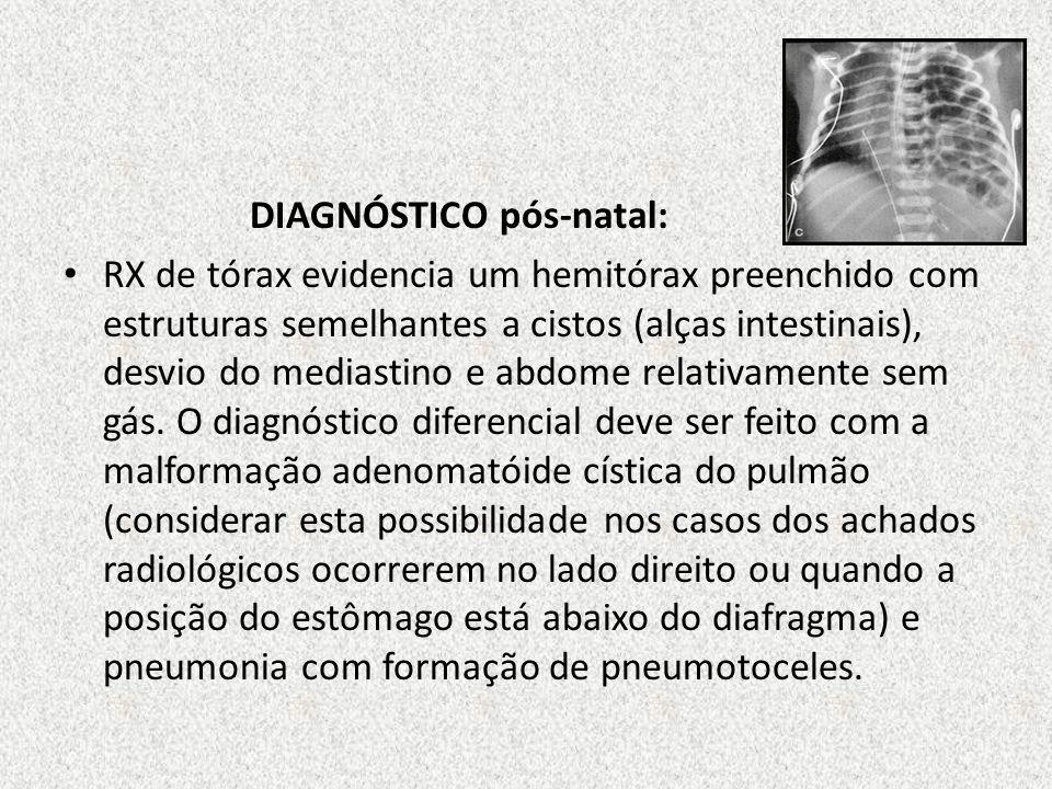 DIAGNÓSTICO pós-natal: RX de tórax evidencia um hemitórax preenchido com estruturas semelhantes a cistos (alças intestinais), desvio do mediastino e a