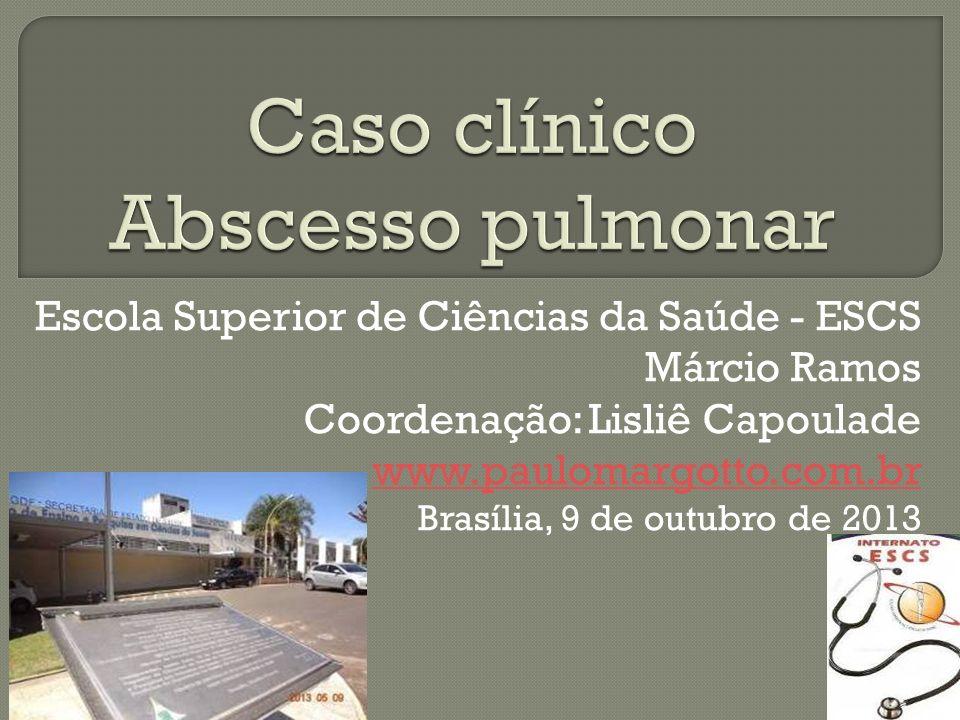 Escola Superior de Ciências da Saúde - ESCS Márcio Ramos Coordenação: Lisliê Capoulade www.paulomargotto.com.br Brasília, 9 de outubro de 2013