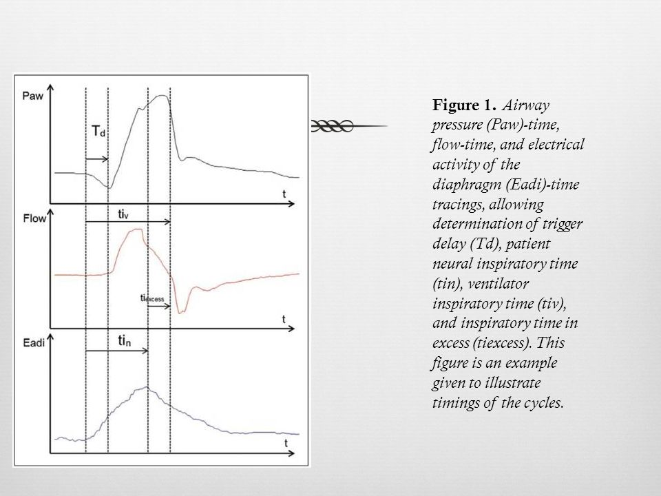 Figure 1. Airway pressure (Paw)-time, flow-time, and electrical activity of the diaphragm (Eadi)-time tracings, allowing determination of trigger dela