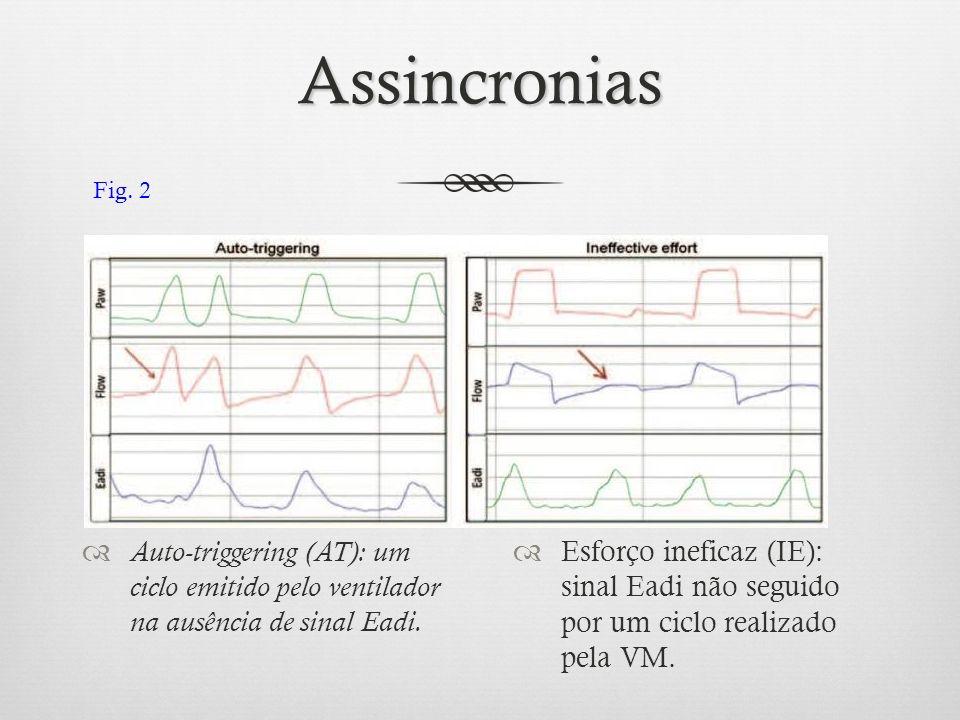 Assincronias Auto-triggering (AT): um ciclo emitido pelo ventilador na ausência de sinal Eadi. Esforço ineficaz (IE): sinal Eadi não seguido por um ci