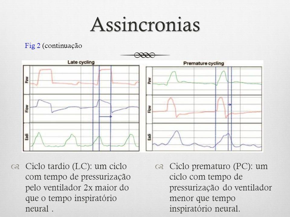 Assincronias Ciclo tardio (LC): um ciclo com tempo de pressurização pelo ventilador 2x maior do que o tempo inspiratório neural. Ciclo prematuro (PC):