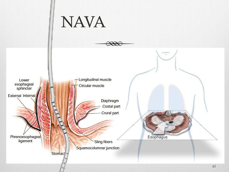 63 Esophagus NAVA