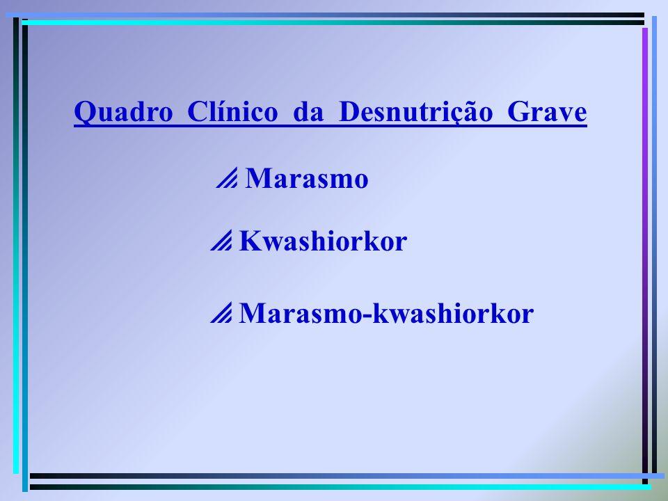 Quadro Clínico da Desnutrição Grave Marasmo Kwashiorkor Marasmo-kwashiorkor