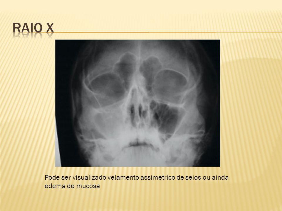 Pode ser visualizado velamento assimétrico de seios ou ainda edema de mucosa