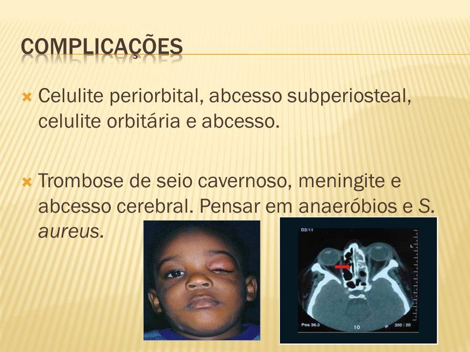 Celulite periorbital, abcesso subperiosteal, celulite orbitária e abcesso. Trombose de seio cavernoso, meningite e abcesso cerebral. Pensar em anaerób