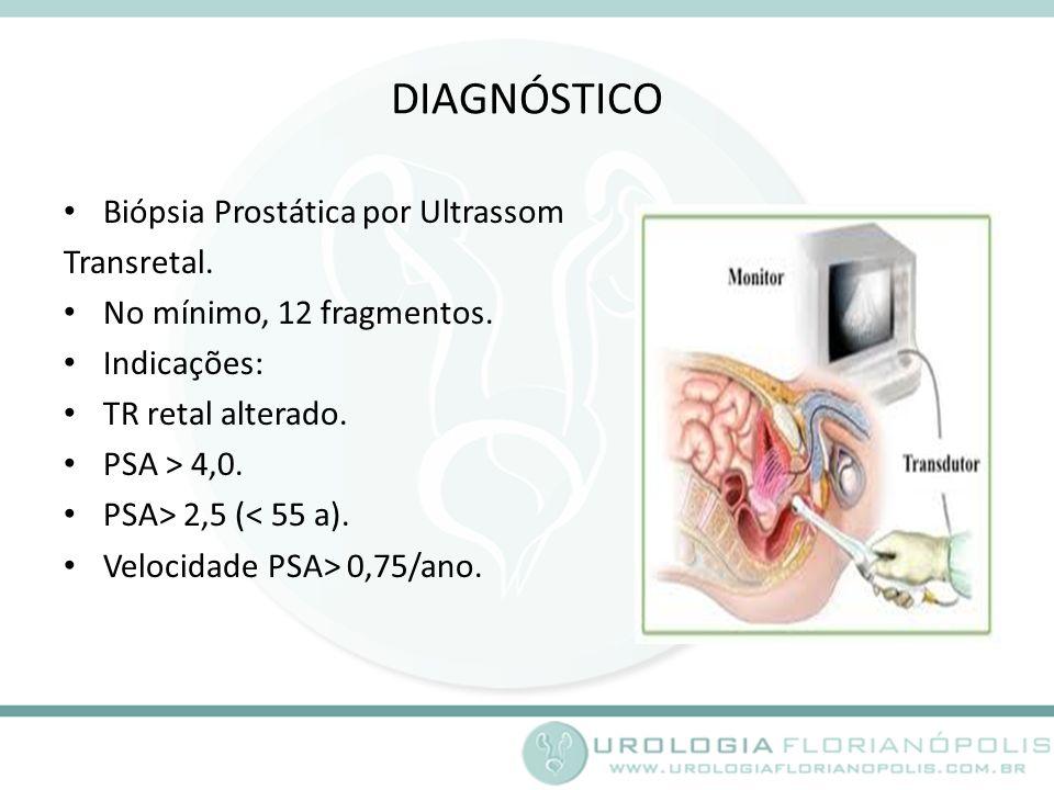 DIAGNÓSTICO Biópsia Prostática por Ultrassom Transretal.