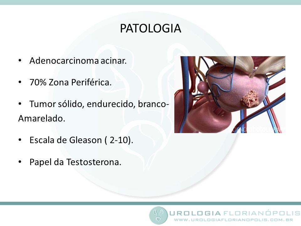 PATOLOGIA Adenocarcinoma acinar.70% Zona Periférica.