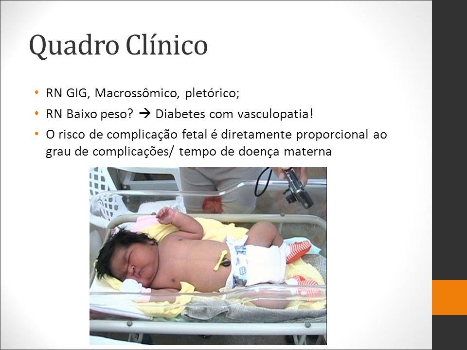 Quadro Clínico RN GIG, Macrossômico, pletórico; RN Baixo peso? Diabetes com vasculopatia! O risco de complicação fetal é diretamente proporcional ao g
