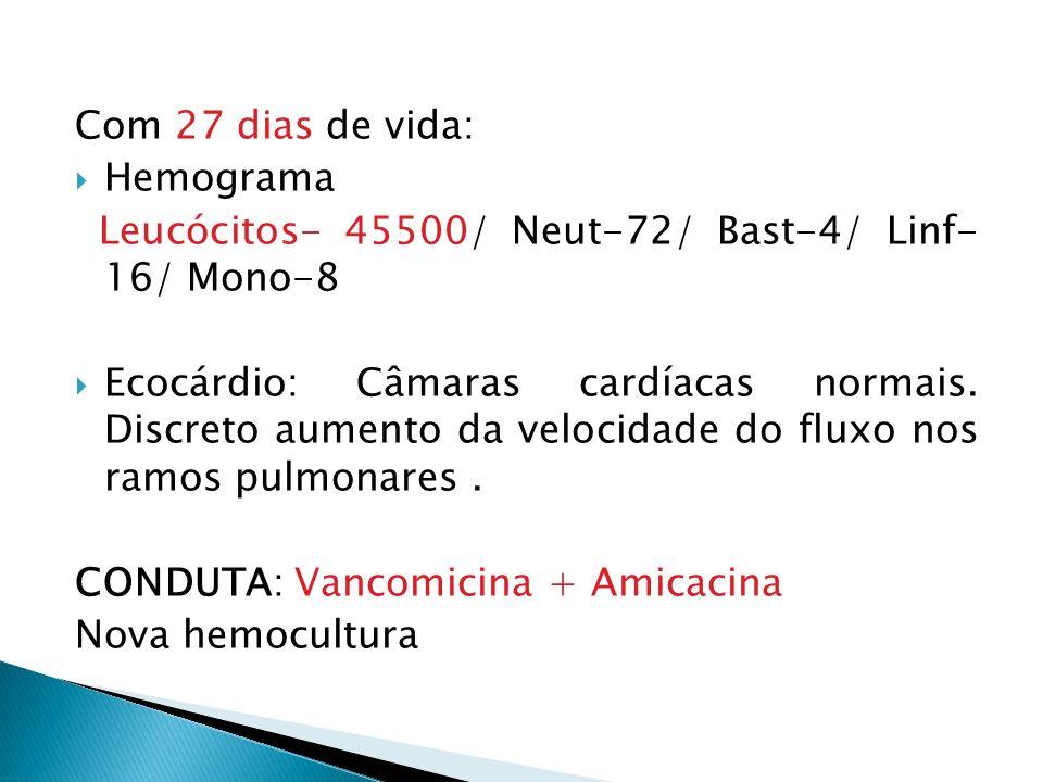Com 27 dias de vida: Hemograma Leucócitos- 45500/ Neut-72/ Bast-4/ Linf- 16/ Mono-8 Ecocárdio: Câmaras cardíacas normais.