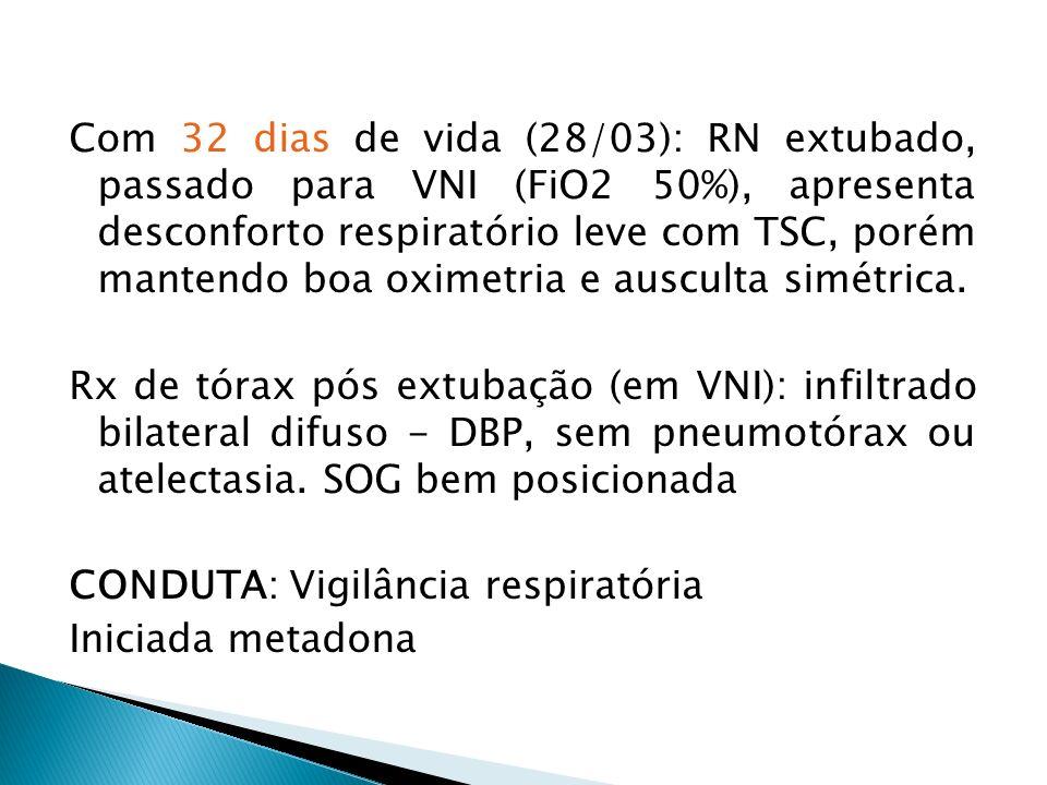Com 32 dias de vida (28/03): RN extubado, passado para VNI (FiO2 50%), apresenta desconforto respiratório leve com TSC, porém mantendo boa oximetria e ausculta simétrica.