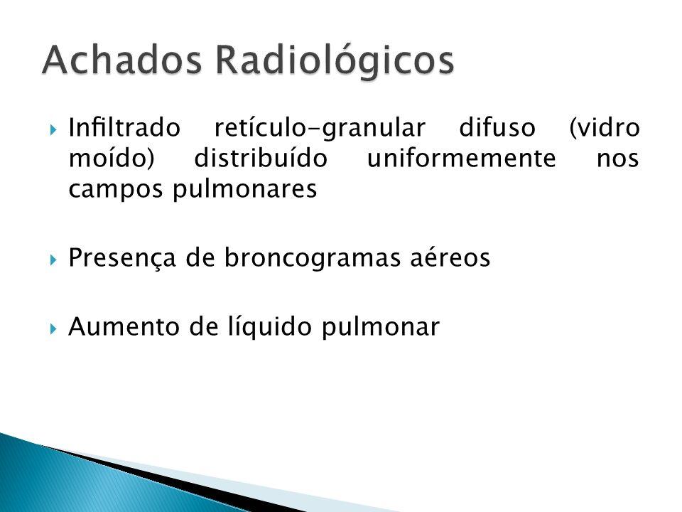 Inltrado retículo-granular difuso (vidro moído) distribuído uniformemente nos campos pulmonares Presença de broncogramas aéreos Aumento de líquido pul