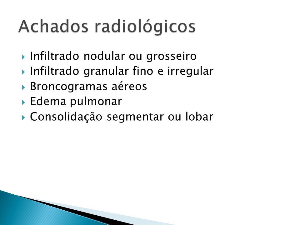 Infiltrado nodular ou grosseiro Infiltrado granular fino e irregular Broncogramas aéreos Edema pulmonar Consolidação segmentar ou lobar