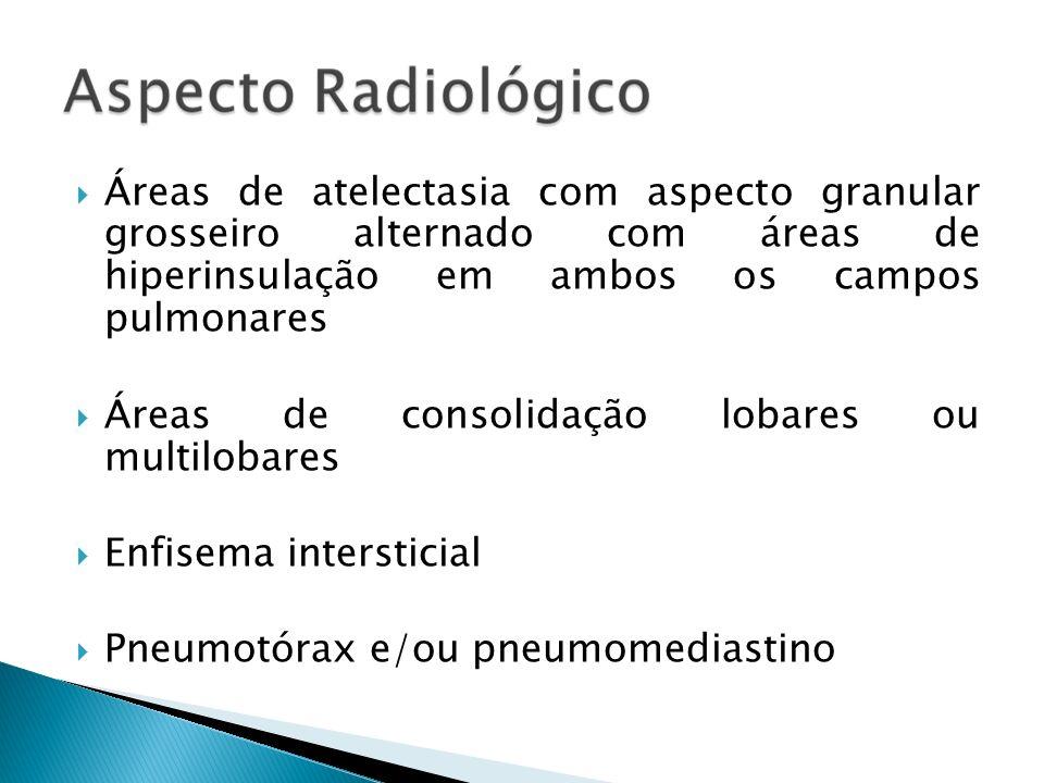 Áreas de atelectasia com aspecto granular grosseiro alternado com áreas de hiperinsulação em ambos os campos pulmonares Áreas de consolidação lobares ou multilobares Enfisema intersticial Pneumotórax e/ou pneumomediastino