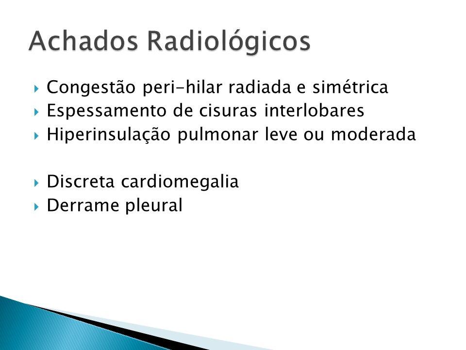 Congestão peri-hilar radiada e simétrica Espessamento de cisuras interlobares Hiperinsulação pulmonar leve ou moderada Discreta cardiomegalia Derrame