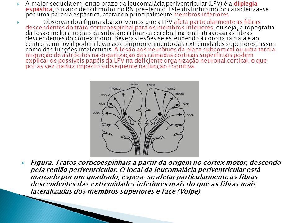 A maior seqüela em longo prazo da leucomalácia periventricular (LPV) é a diplegia espástica, o maior déficit motor no RN pré-termo. Este distúrbio mot