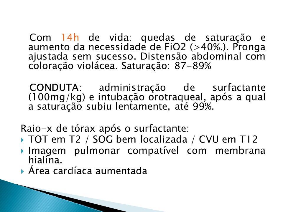 Com 14h de vida: quedas de saturação e aumento da necessidade de FiO2 (>40%.). Pronga ajustada sem sucesso. Distensão abdominal com coloração violácea