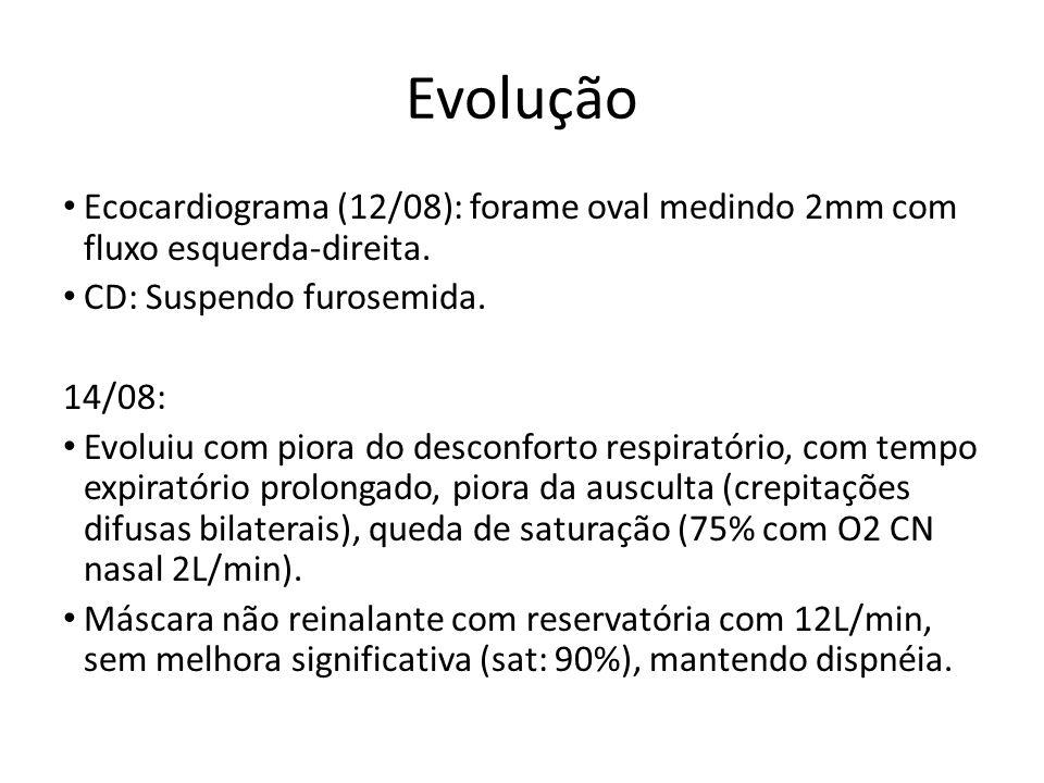 Evolução Ecocardiograma (12/08): forame oval medindo 2mm com fluxo esquerda-direita. CD: Suspendo furosemida. 14/08: Evoluiu com piora do desconforto