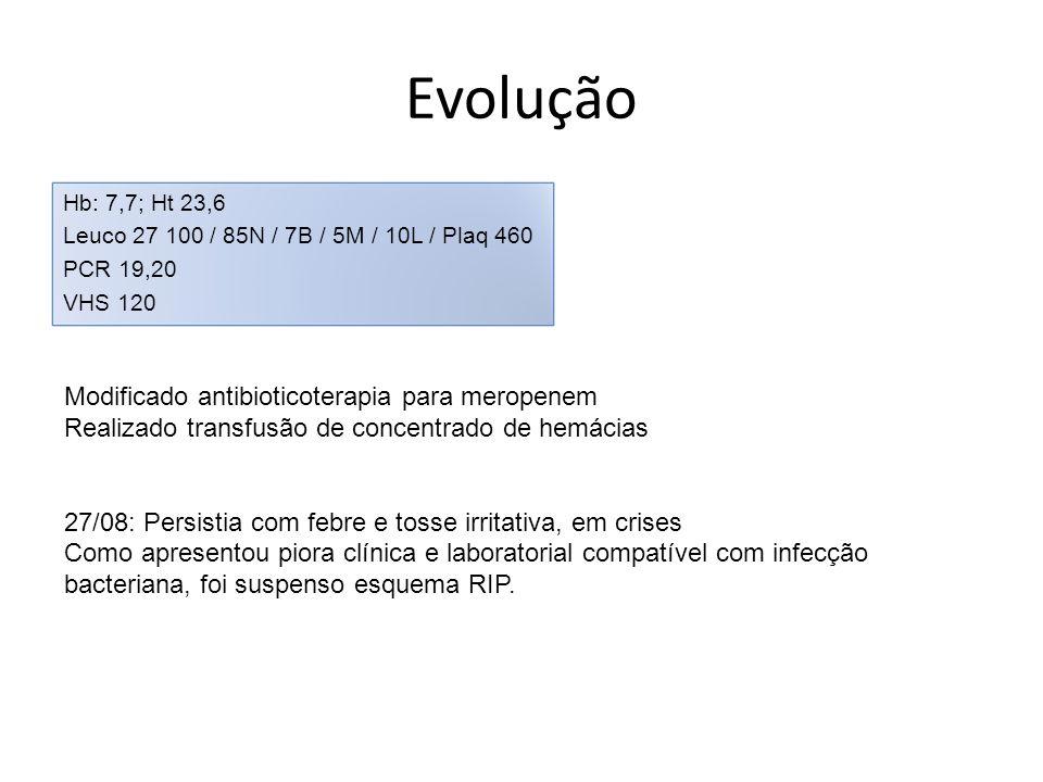 Evolução Hb: 7,7; Ht 23,6 Leuco 27 100 / 85N / 7B / 5M / 10L / Plaq 460 PCR 19,20 VHS 120 Modificado antibioticoterapia para meropenem Realizado trans