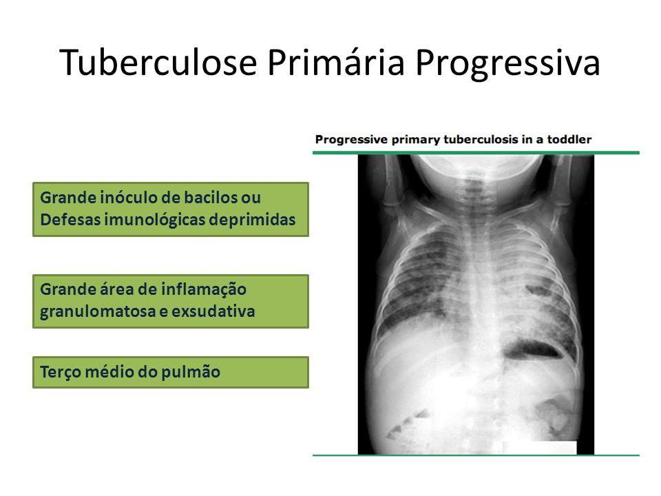 Tuberculose Primária Progressiva Grande inóculo de bacilos ou Defesas imunológicas deprimidas Grande área de inflamação granulomatosa e exsudativa Ter