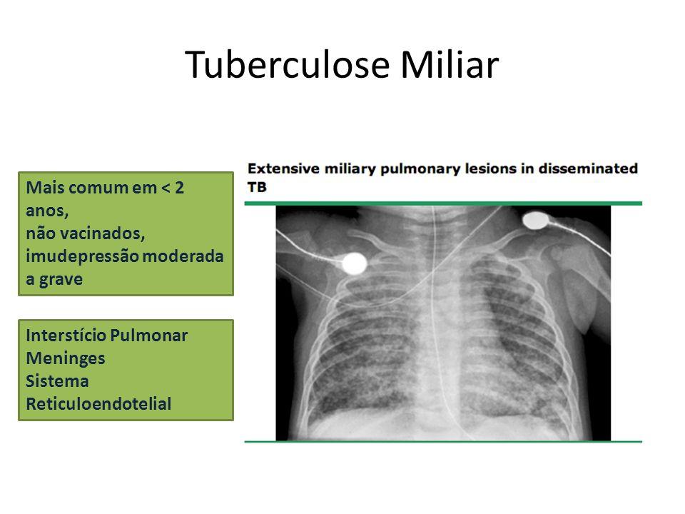 Tuberculose Miliar Mais comum em < 2 anos, não vacinados, imudepressão moderada a grave Interstício Pulmonar Meninges Sistema Reticuloendotelial