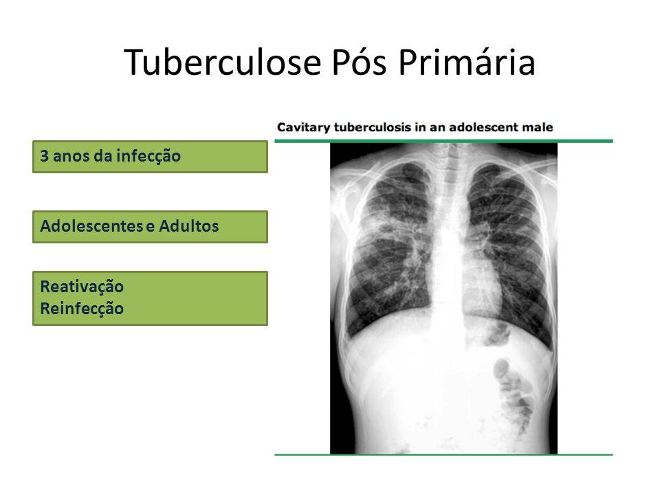 Tuberculose Pós Primária 3 anos da infecção Adolescentes e Adultos Reativação Reinfecção
