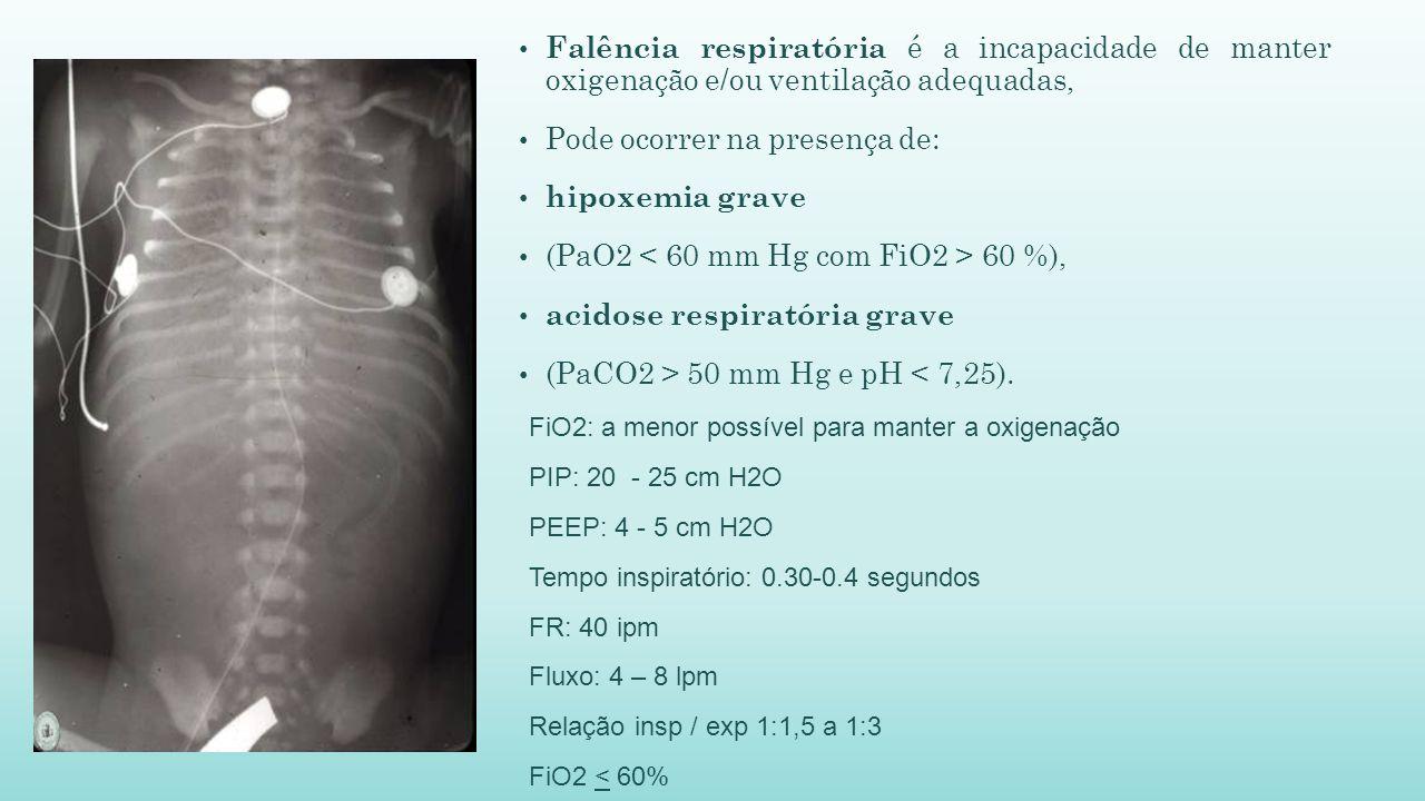 Falência respiratória é a incapacidade de manter oxigenação e/ou ventilação adequadas, Pode ocorrer na presença de: hipoxemia grave (PaO2 60 %), acidose respiratória grave (PaCO2 > 50 mm Hg e pH < 7,25).