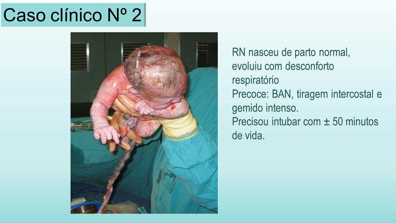 RN nasceu de parto normal, evoluiu com desconforto respiratório Precoce: BAN, tiragem intercostal e gemido intenso.