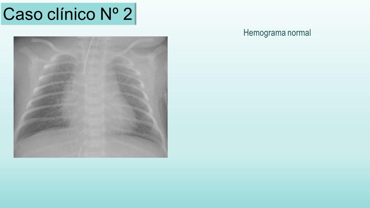Hemograma normal Caso clínico Nº 2
