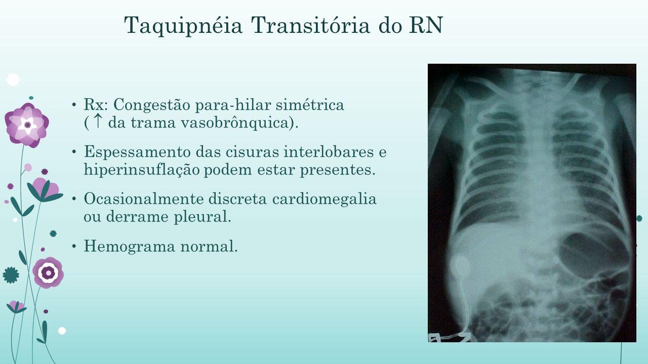 Taquipnéia Transitória do RN Rx: Congestão para-hilar simétrica ( da trama vasobrônquica).