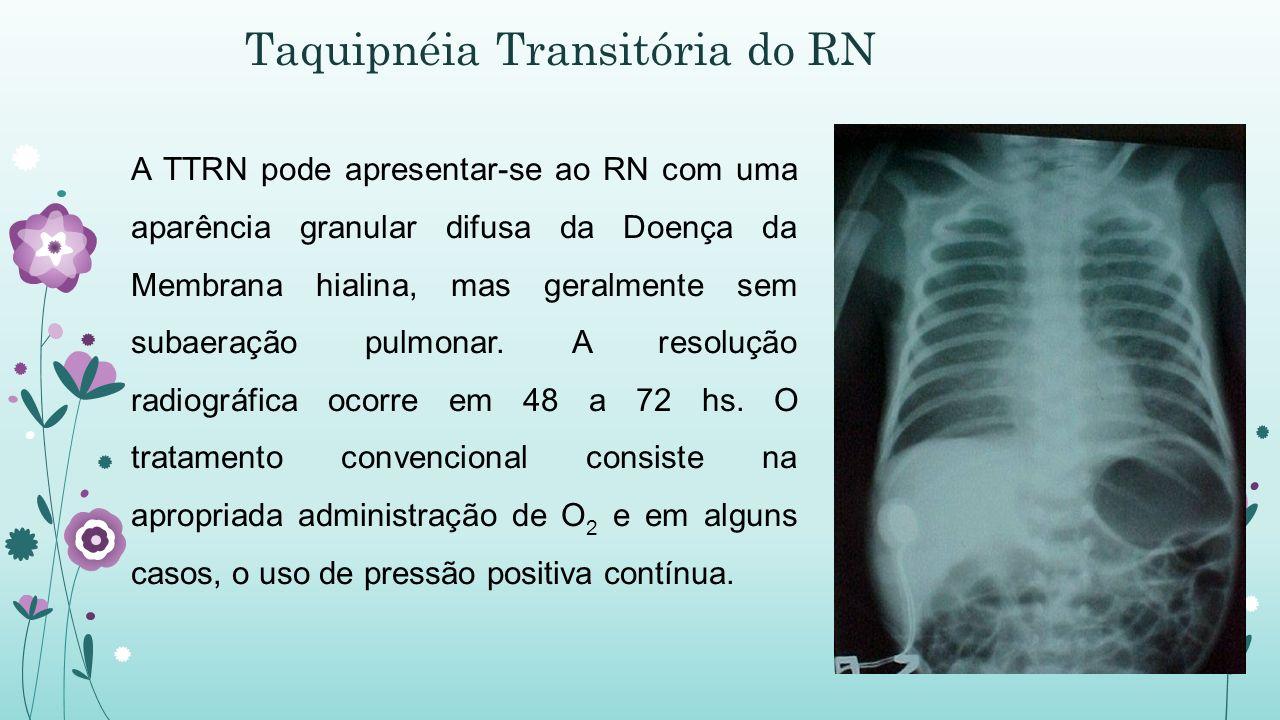 Taquipnéia Transitória do RN A TTRN pode apresentar-se ao RN com uma aparência granular difusa da Doença da Membrana hialina, mas geralmente sem subaeração pulmonar.