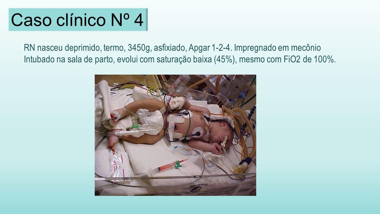 RN nasceu deprimido, termo, 3450g, asfixiado, Apgar 1-2-4.