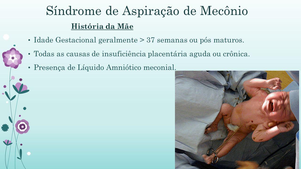 Síndrome de Aspiração de Mecônio História da Mãe Idade Gestacional geralmente > 37 semanas ou pós maturos.
