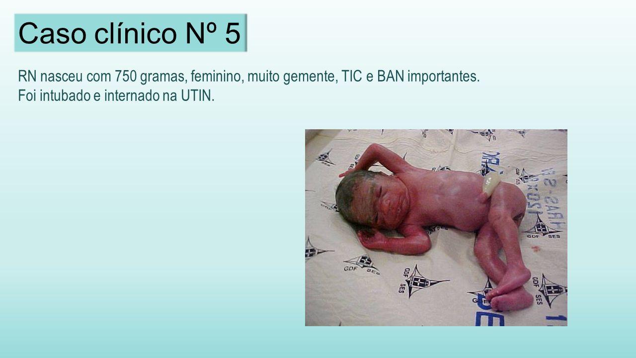RN nasceu com 750 gramas, feminino, muito gemente, TIC e BAN importantes.