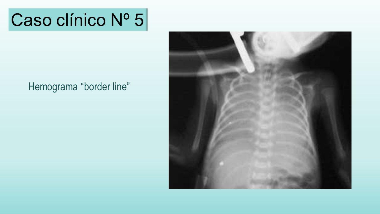 Hemograma border line Caso clínico Nº 5