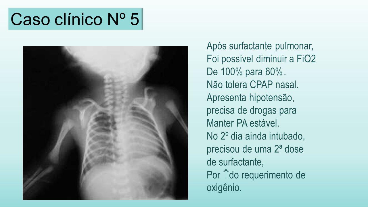 Após surfactante pulmonar, Foi possível diminuir a FiO2 De 100% para 60%.