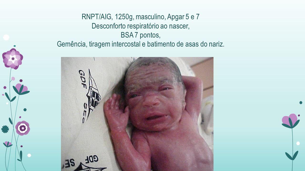 RNPT/AIG, 1250g, masculino, Apgar 5 e 7 Desconforto respiratório ao nascer, BSA 7 pontos, Gemência, tiragem intercostal e batimento de asas do nariz.