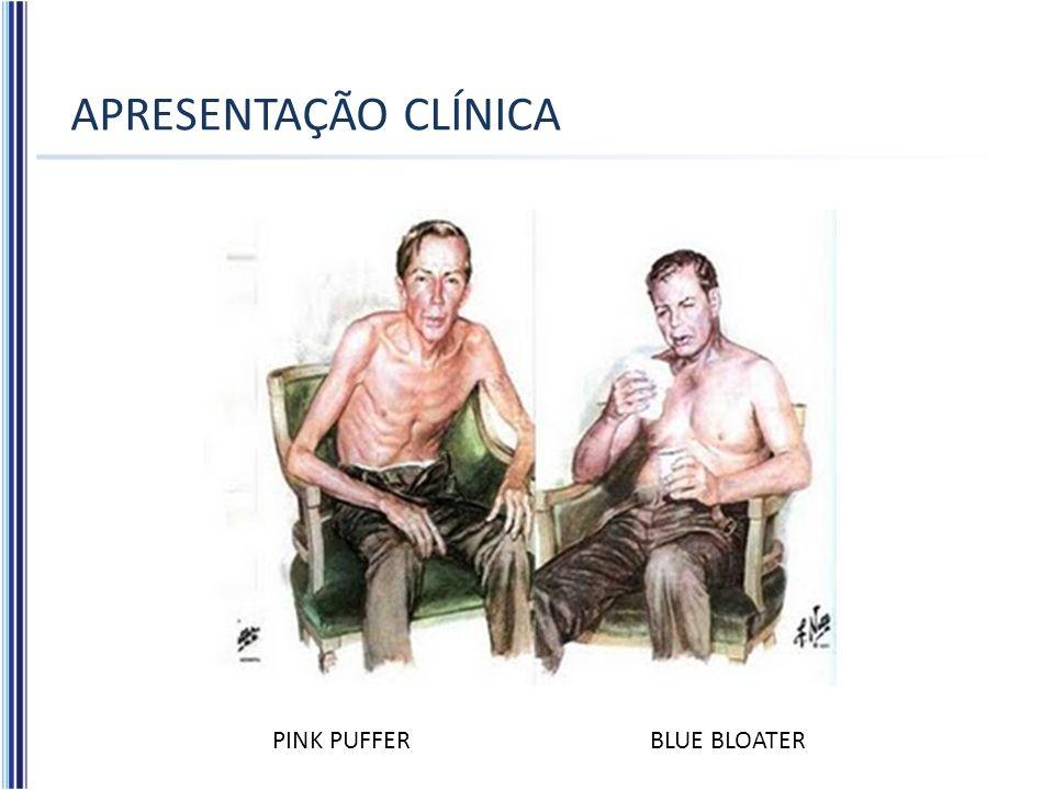 APRESENTAÇÃO CLÍNICA PINK PUFFERBLUE BLOATER
