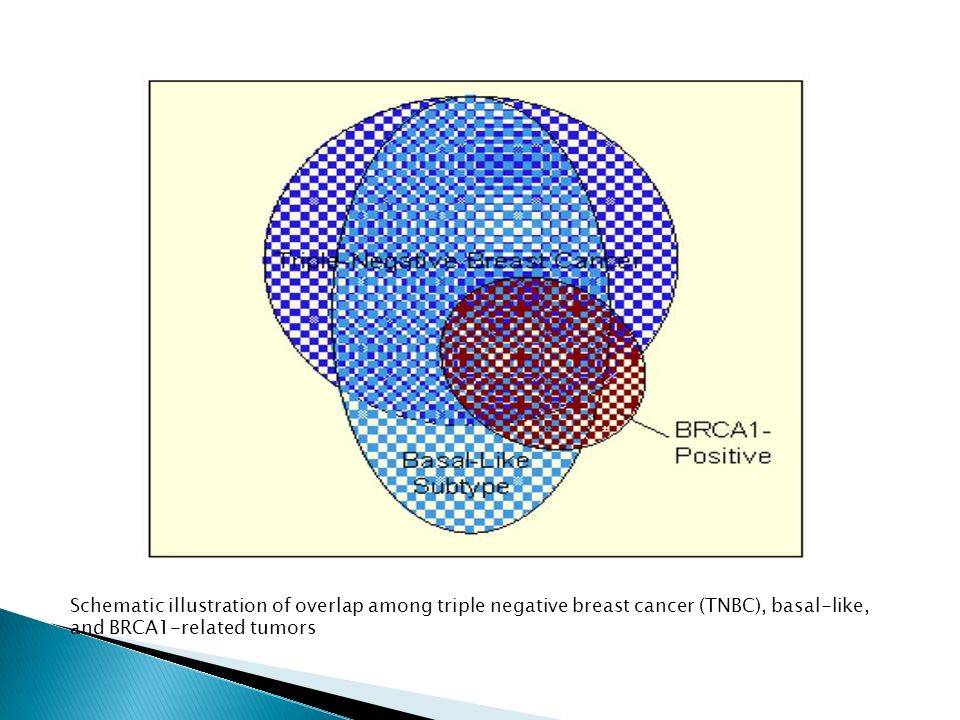Schematic illustration of overlap among triple negative breast cancer (TNBC), basal-like, and BRCA1-related tumors