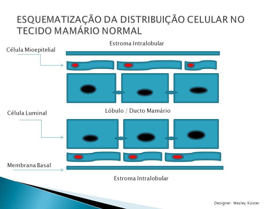 Agentes antiangiogênicos Bevacizumab Portadores de TNBCs possuem maior expressão de VEGF (Fator de crescimento endotelial vascular) Utilizado em associação a quimioterapia neoadjuvante Estudos apontam maior PCR ( em média 15% ) quando a utilização do agente antiangiogênico.