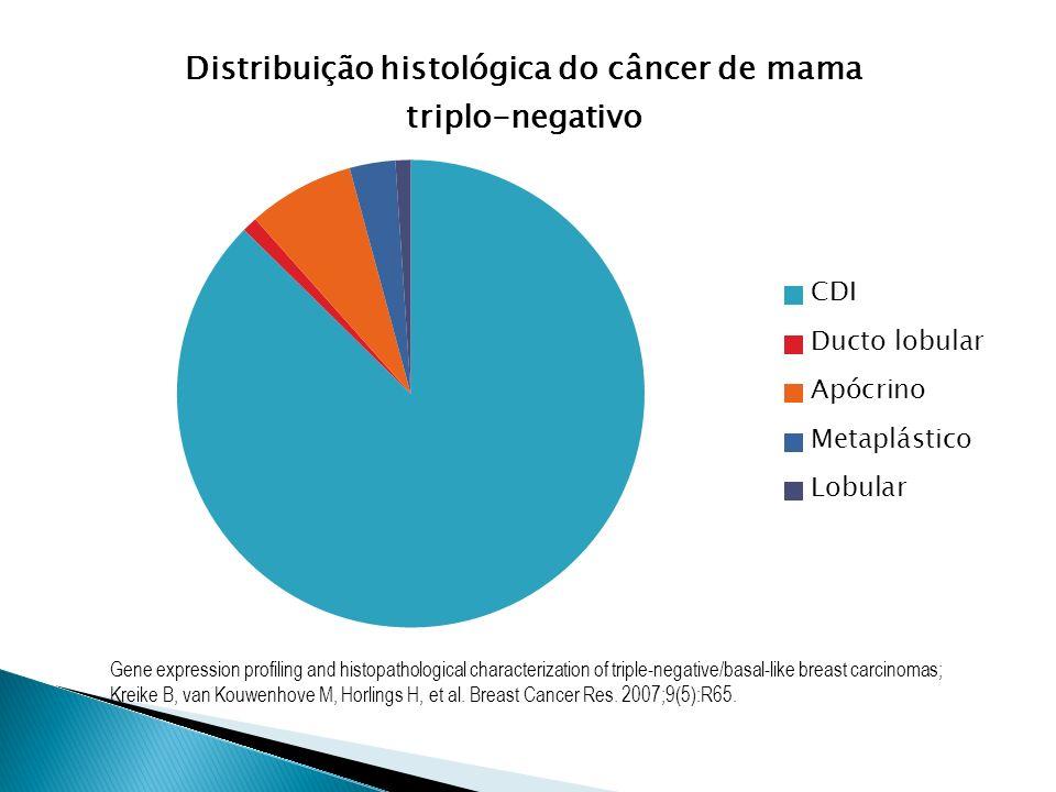 Define prognóstico dos pacientes com TNBCs Pacientes com TNBC geralmente desenvolvem metástases viscerais Sobrevida média de 13 meses após diagnóstico metastático Current Concept: Triple-Negative Breast Cancer; Foulkes W, Smith I, Reis J; New England J Medicine.